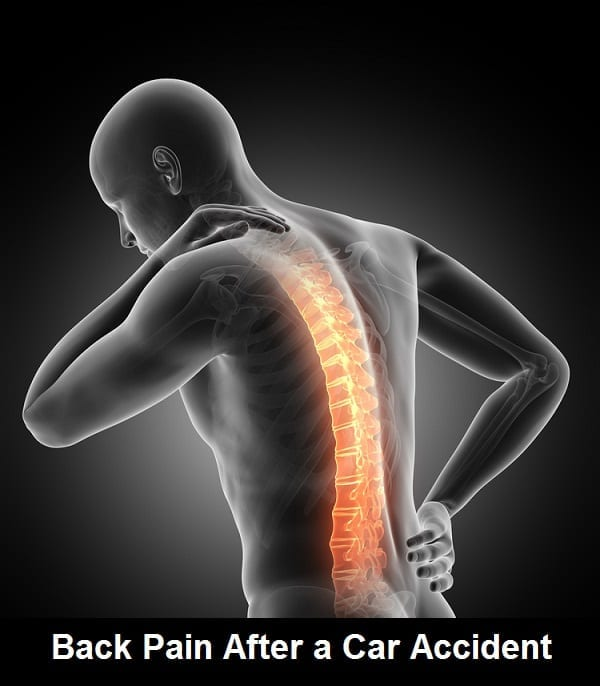 Back Pain After A Vehicle Accident In Los Angeles