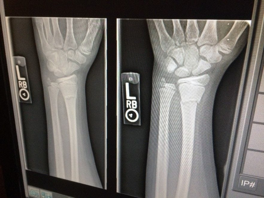 An x-ray after a car accident