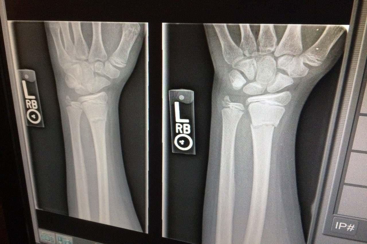 An x-ray of an injured wrist